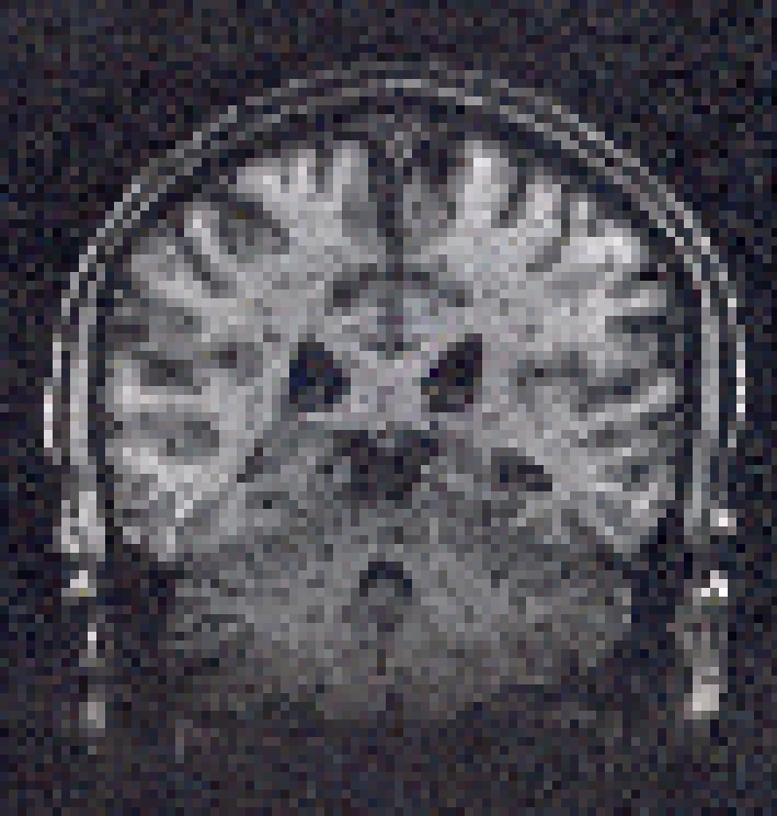 MRIoff.png