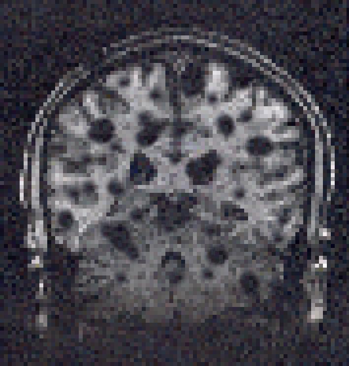 MRIon.png